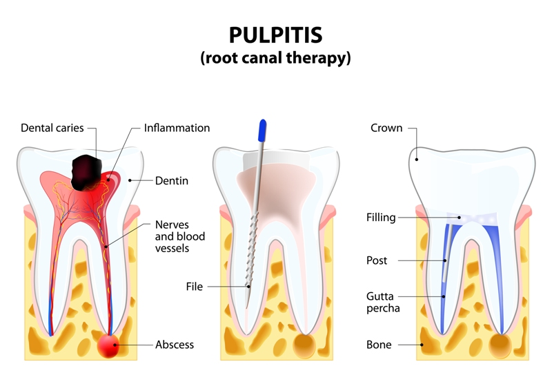 Joondalup Dentist Services - Root Canal Treatment