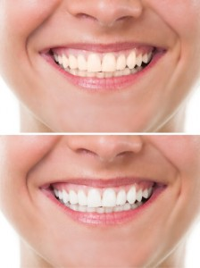 Joondalup-Teeth-Whitening